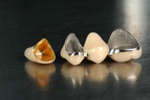 Dental-Ceramic-Fused-to-Metal-Crown-Bridge