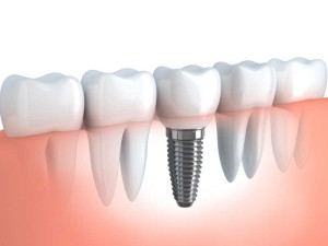 Dental-Implant-800x600