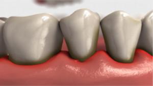 Exemplo-de-periodontite