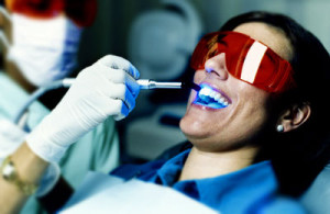 Laser-Dental-Cleaning