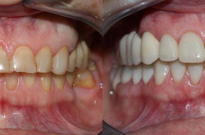 Цены на реставрацию зубов