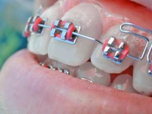aparelho-dental-1569091