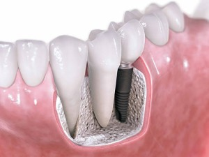 dental-implant-uygulamasi-e1390504699339