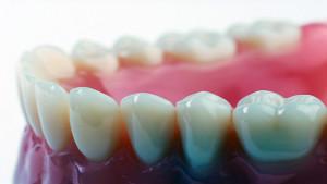 dental_fillings3