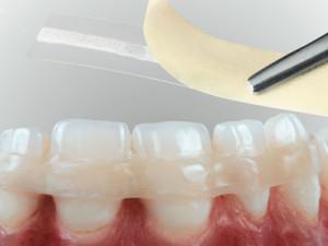 podvizhnost_zubov_3