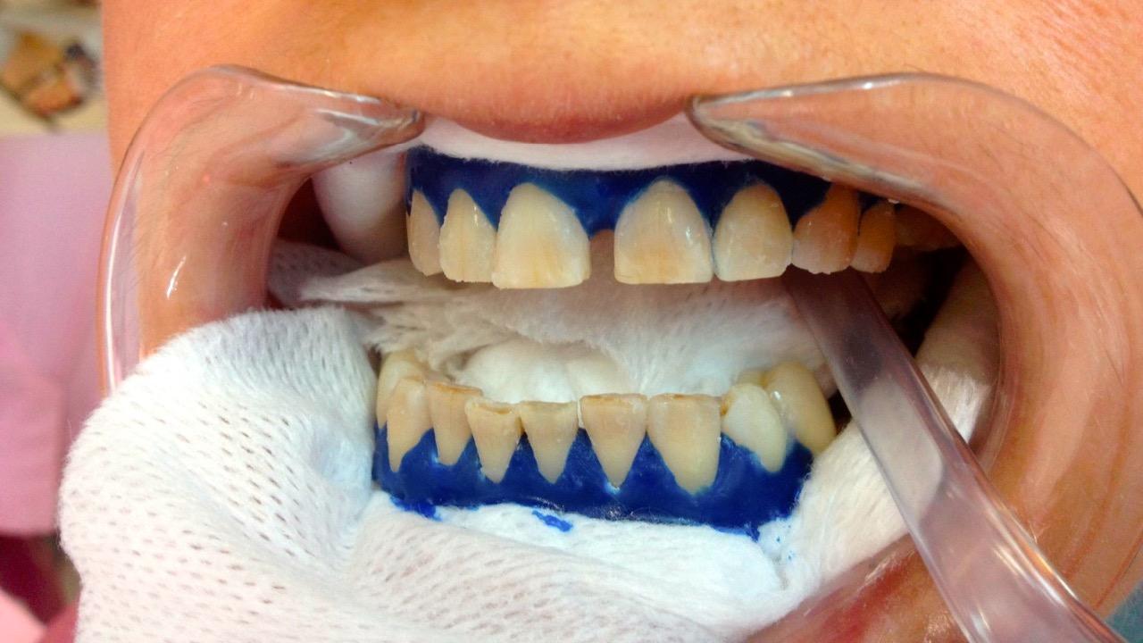 виды отбеливания зубов продокторов