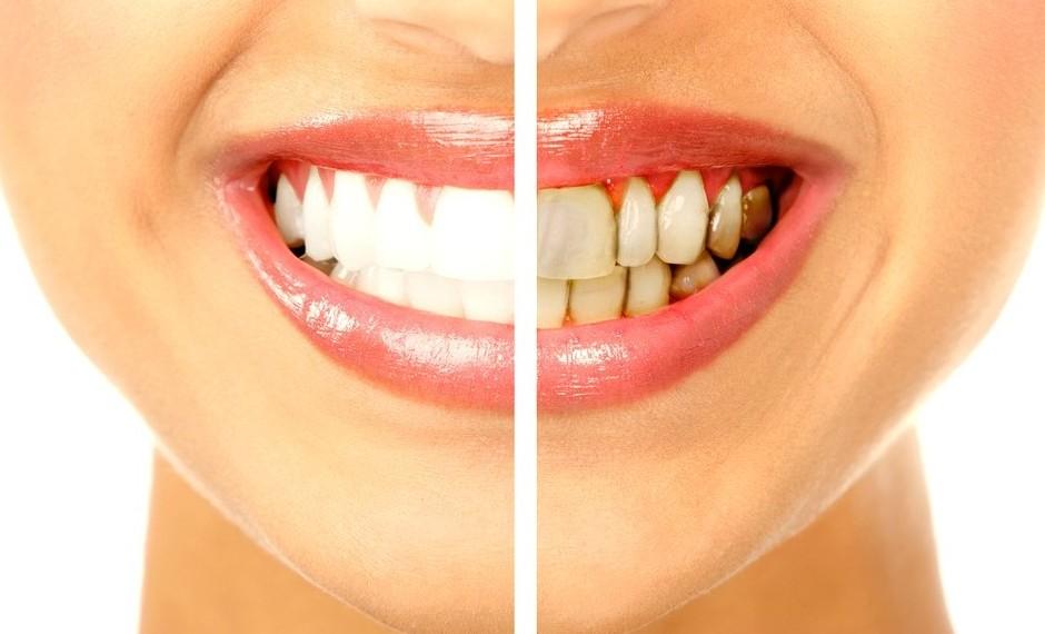 Удаление камней и отбеливание зубов
